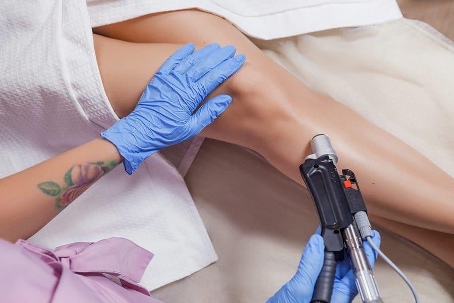 Все о процедуре лазерной эпиляции